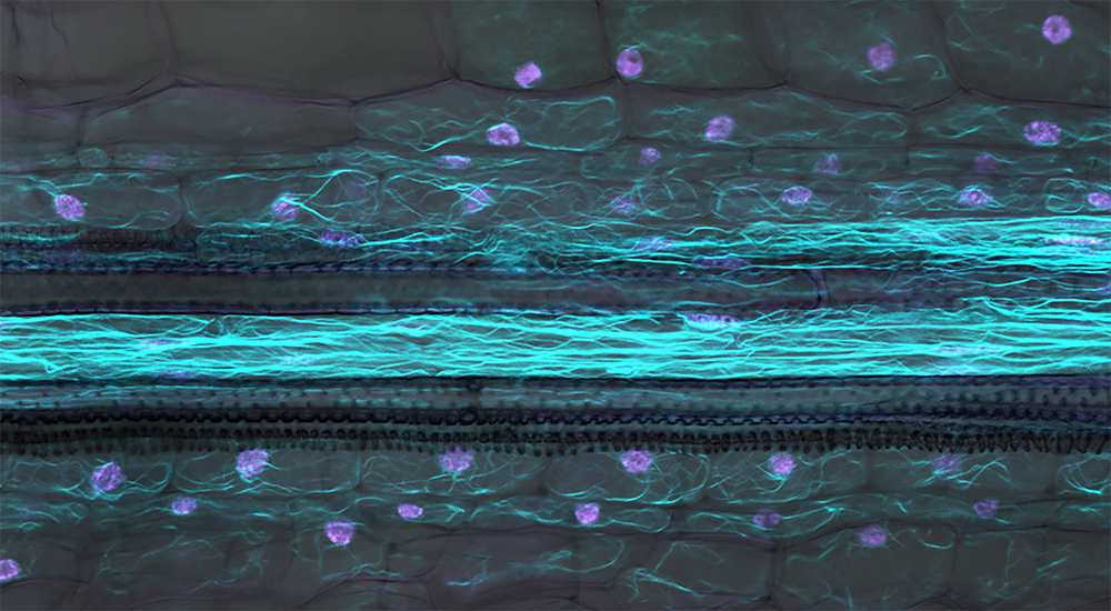 In a cross-section of the root of the legume Medicago truncatula a part of a cells internal skeleton, actin filaments (cyan) become visible. They surround all major internal compartment of the cell including the nuclei (magenta). The central cells are par