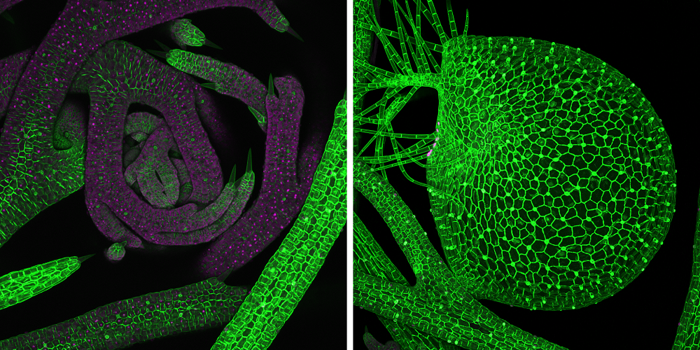 Microscopy images of the traps and meristem area of Utricularia gibba, which is more commonly known as floating bladderwort.